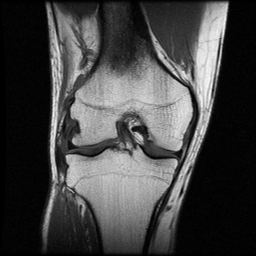 I'm not a doctor, but I think there is my crucial ligament and it looks good.